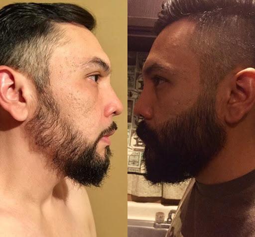 minoxidil barba mercado libre