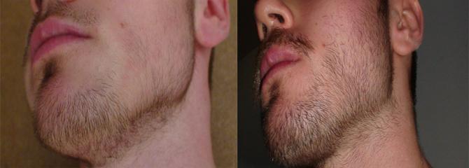 minoxidil barba funciona