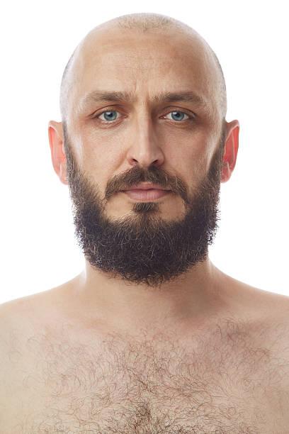 calvos con barba canosa