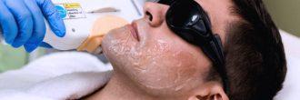 Barba depilación láser