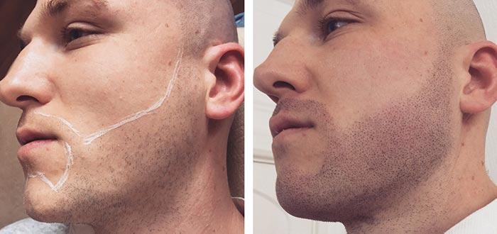 barba rala como aparar