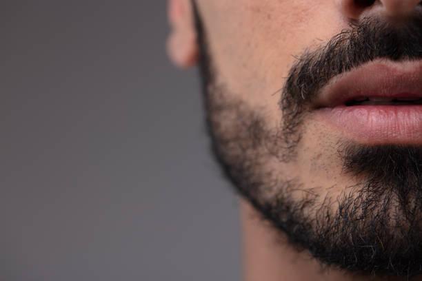 crecer barba sin minoxidil